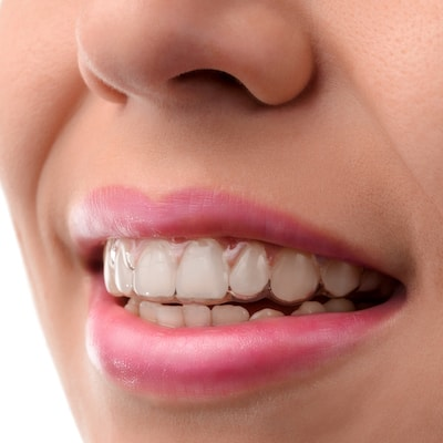 Cosmetic Dentistry Manhattan, NY - Close-up image of a mouth that shows someone wearing Invisalign® clear aligners installed by Midtown Dental Excellence