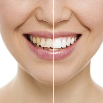 An image showing the difference that teeth whitening at Midtown Dental Excellence can make.
