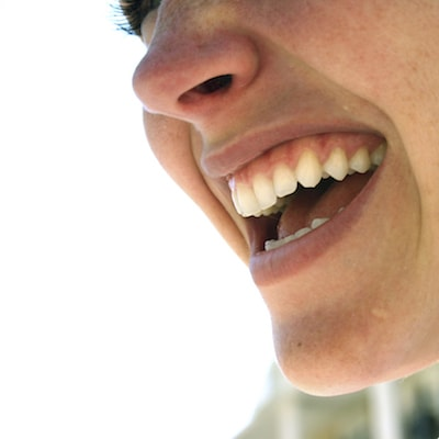 Image of smiling woman to show gums and explain Midtown Periodontics in New York