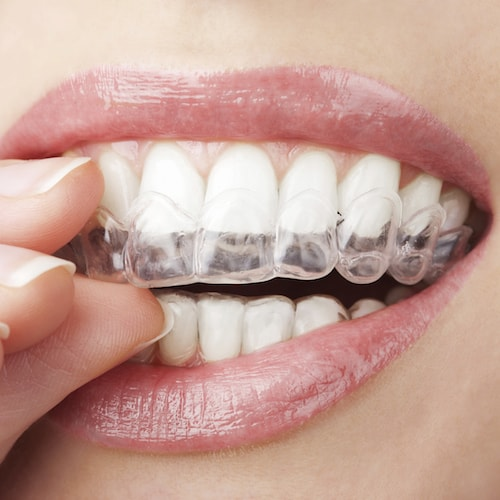 Image of a close-up smile with clear Invisalign aligners