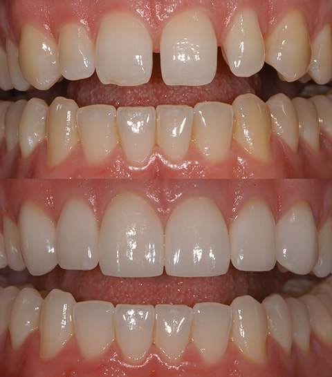 An actual before and after case of porcelain veneers at Midtown Dental Excellence